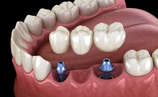 cost of dental implants in Hagerstown